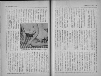石川明「性転換手術はこうして行なう」(『風俗奇譚』196112) (2).jpg